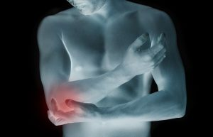 Top Tips for Training With An Injury
